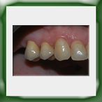 Corone in zirconio-2A